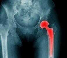 Hip Resurfacing - Chris Boone, MD