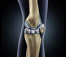 Knee Replacement - Chris Boone, MD